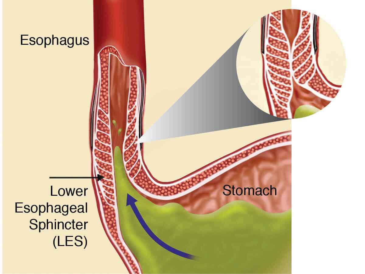 Fig1-diagram-LES-blowout-opt-2