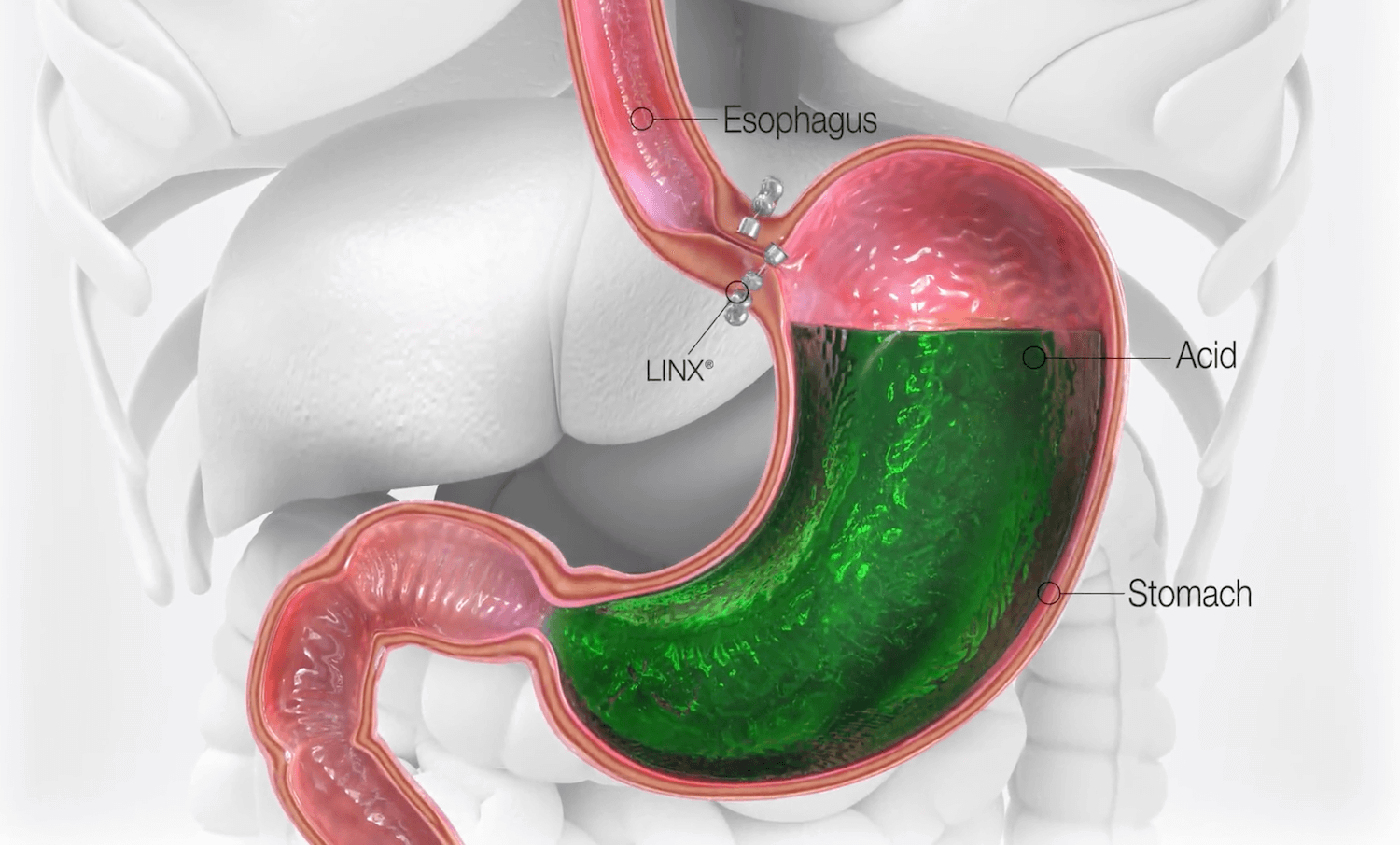 Hiatal Hernia - LINX and Nissen / Toupet Fundoplication